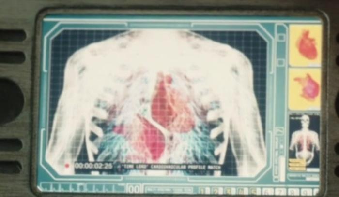 Binary_vascular_system